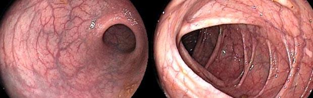 Blutet analtrombose Abbindung /